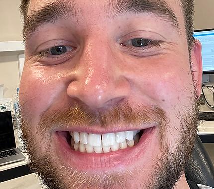 Beard-After-New-Crop.png