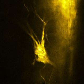 Climbing glomerulus