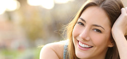 sorrir-beneficios