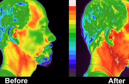 Cell Phone Radiation, Inflammation, Thermography, Airtube Headsets