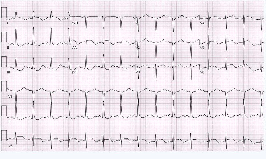 EKG 2917-3066.jpg