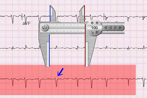 EKG for Residents &Interns 3 Hour 1 x 1 Live Course