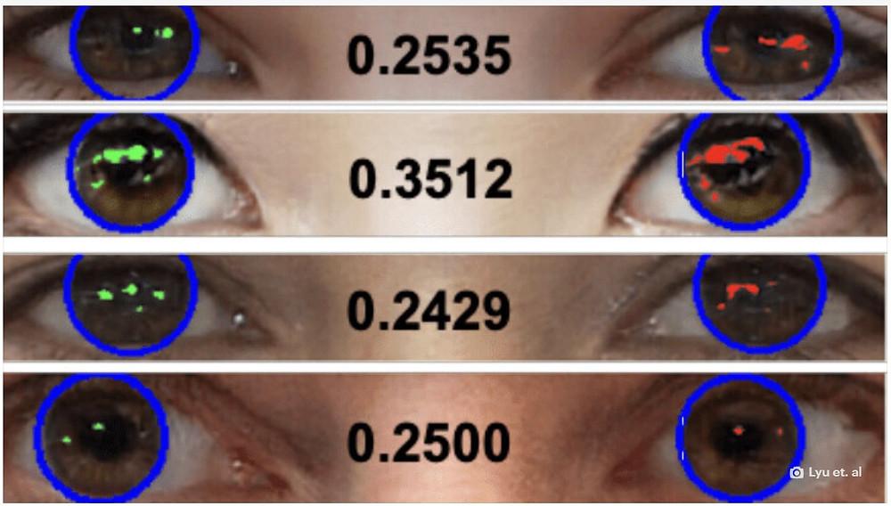 Các  giác mạc có sự khác biệt lớn hơn nhiều trong hình ảnh Deepfake (bên  phải), có thể là do chúng được tạo ra bằng cách kết hợp nhiều ảnh. Ảnh:  Lyu et. Al