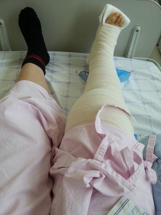 The thrid knee surgery 세번째 무릎수술