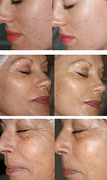 Qi Beauty Facial Before And After.JPG