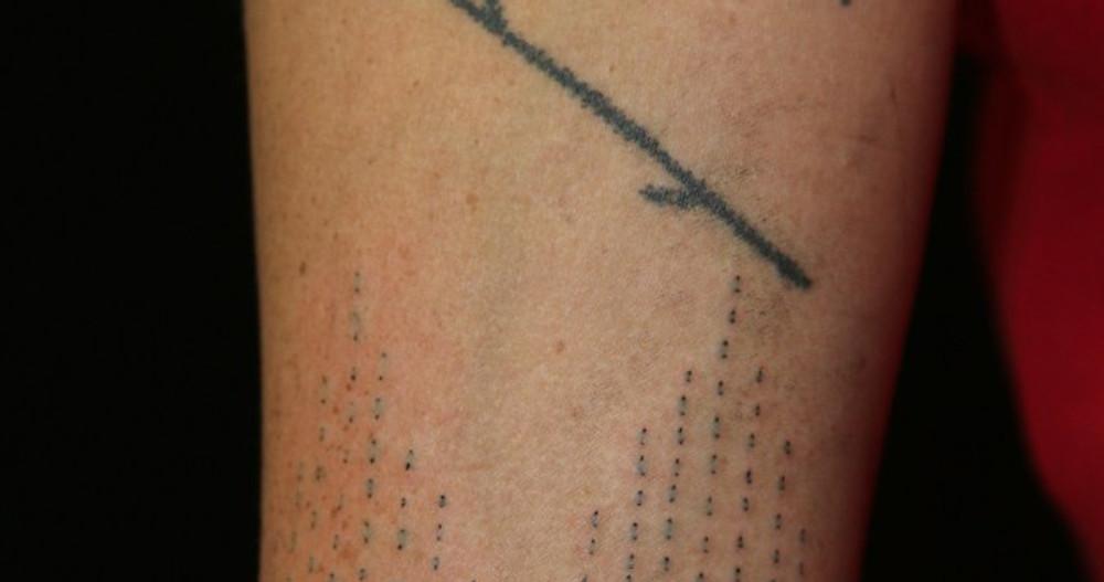 Skin Stitch and Hand Poke Nlaka'pamux Tattoo
