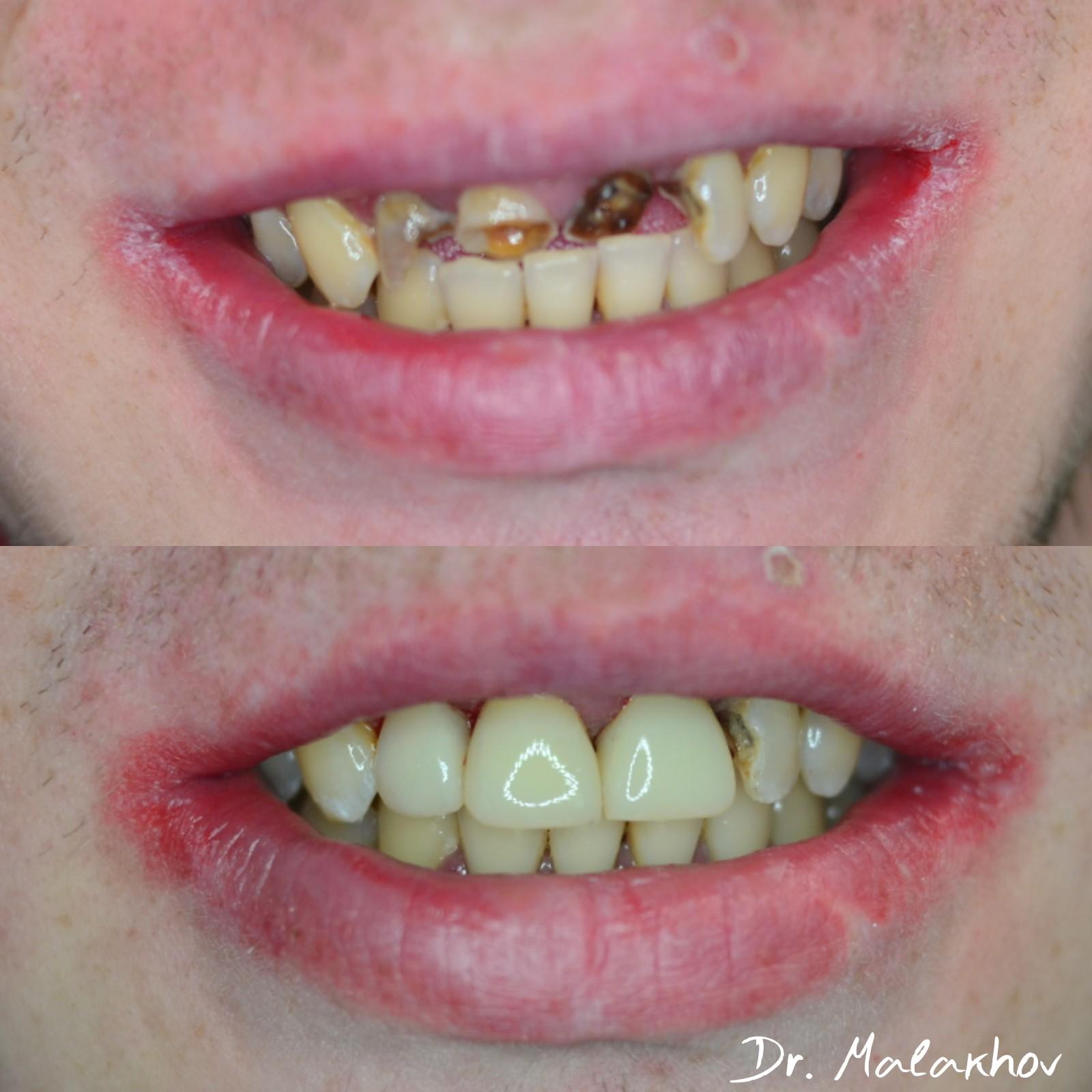 """😉Прямая реставрация композитными материалами зубов: 1.2-1.1-2.1, зуб 2.2 (""""в плане"""")"""