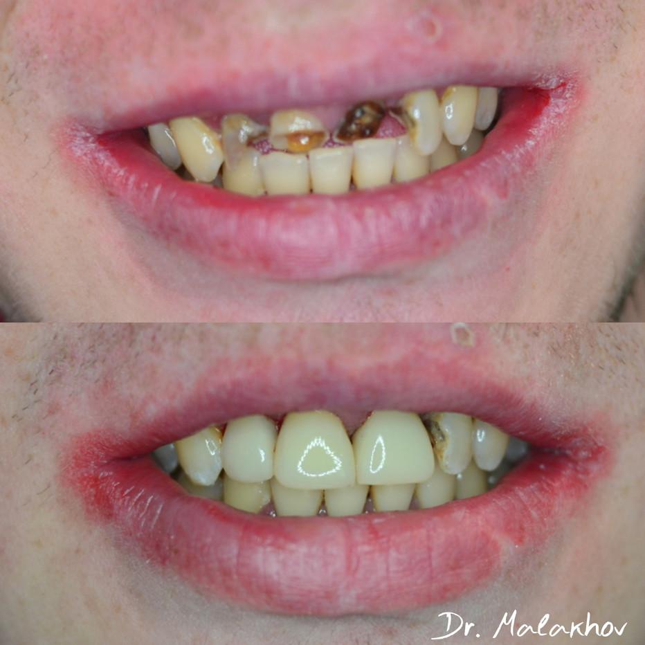 """Прямая реставрация композитными материалами зубов: 1.2-1.1-2.1, зуб 2.2 (""""в плане"""")"""