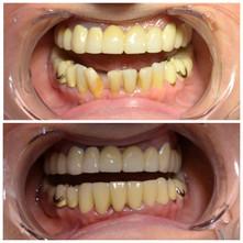 Исправление расположения и формы зубов 4.3-4.2-4.1-3.1-3.2-3.3