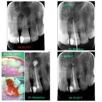 Периодонтит 2.1 зуба