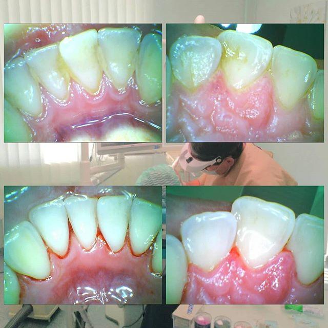 Профгигиенаполости рта — э