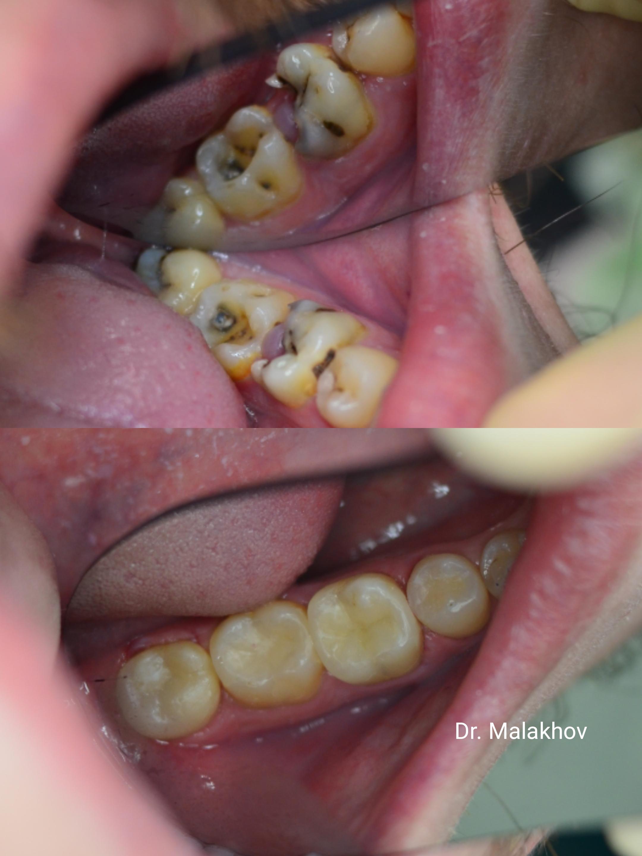Лечение 3.8-3.7-3.6-3.5 зубов
