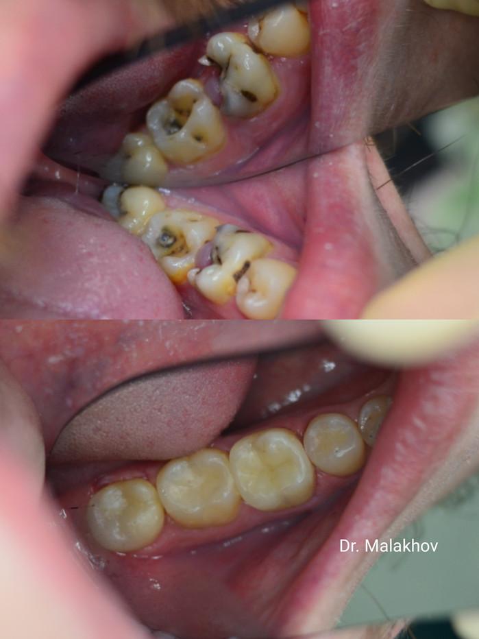 😷Эндодонтическое лечение 3х канального острого пульпита 3.6 🦷зуба (в 2а посещения) и дальнейшее прямое восстановление композитными материалами (3е посещение) ➕лечение глубокого кариеса 3.7-🦷 зуба, среднего кариеса 3.8 и 3.5 с восстановлением композитными материалами👋🤗