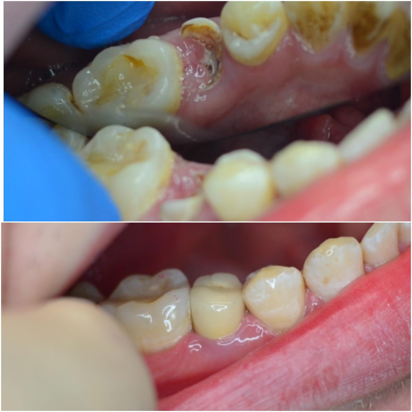 восстановление 3.5 зуба