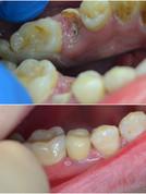 Не спешите удалять зуб- «обреченного» можно спасти.☝