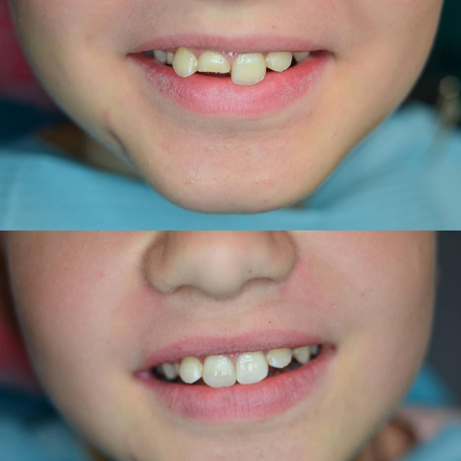 Травматический скол зуба
