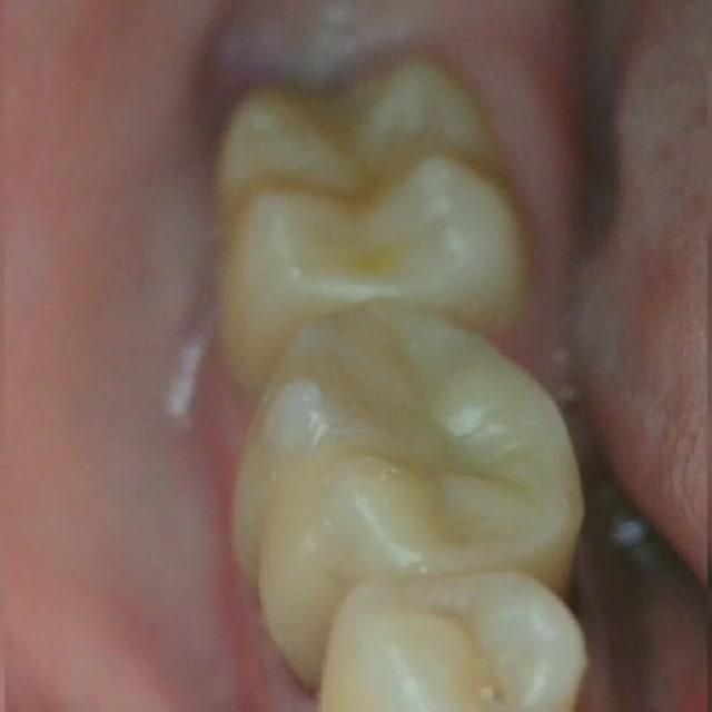 👋Прямая реставрация композитными материалами (замена старых пломб): ранее депульпированного 4.6 зуба и лечение кариеса 4.7 зуба 👋😷💫