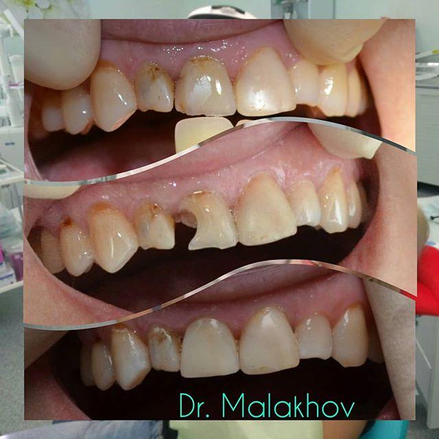 🤗🏥📷Прямая реставрация зуба 1