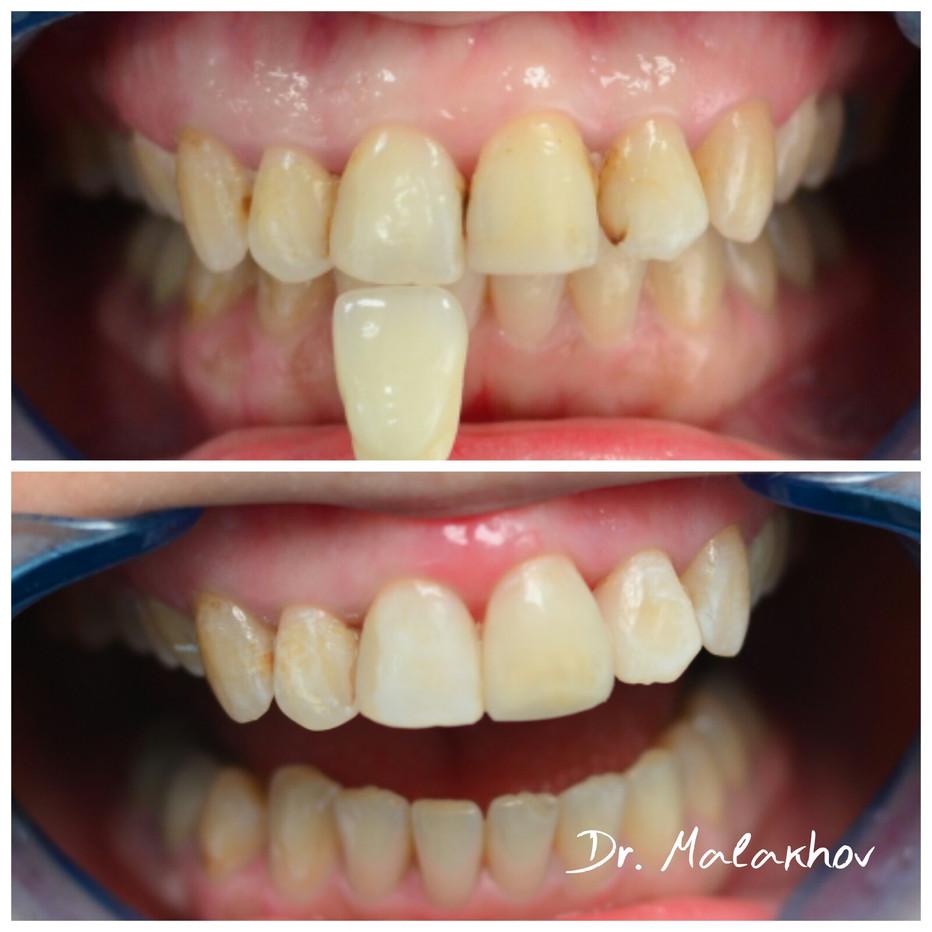 Прямая реставрация 2.1-2.2 зуба