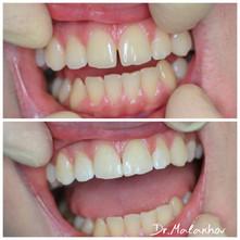 👋🏥😀Прямая эстетическая реставрация композитными материалами 1.1-2.1 зубов