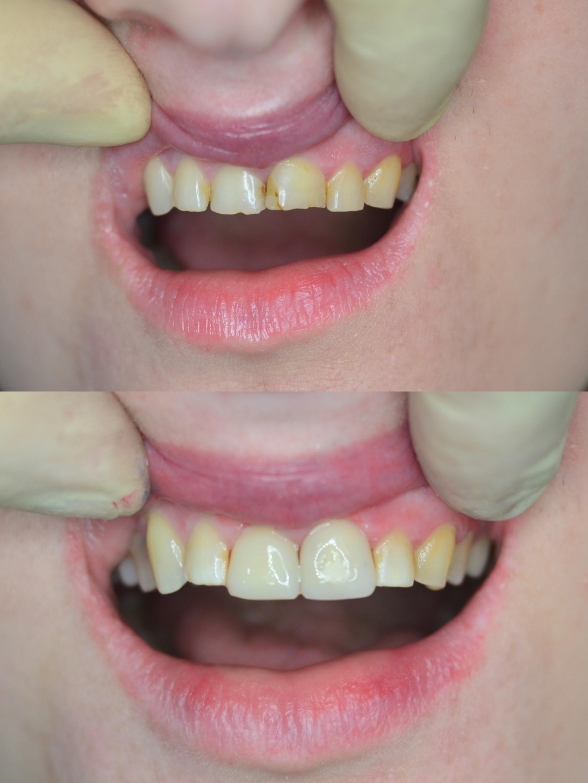 Прямая реставрация 1.1-2.1 зубов