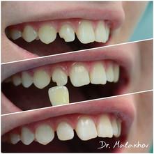 Эстетическая реставрация травматического скола 1.2 зуба
