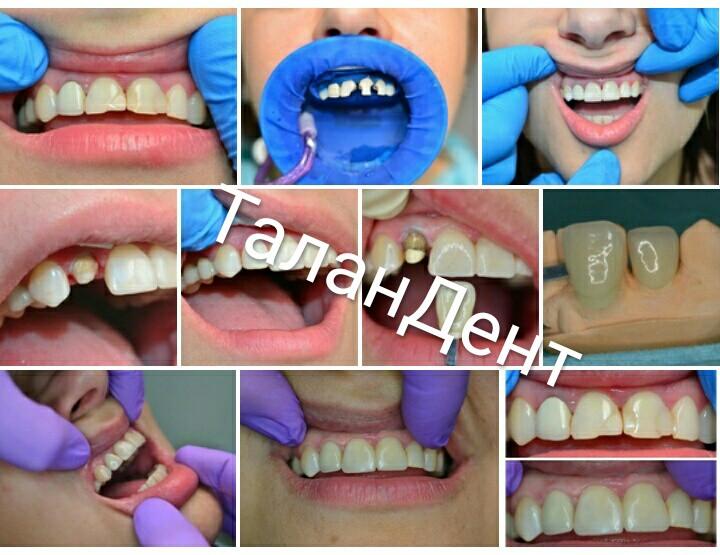 🤗🏥👋Преображение улыбки😀𑰿 методом реставрации зубов: прямой (1.1-2.1-2.2) и непрямой (1.2)