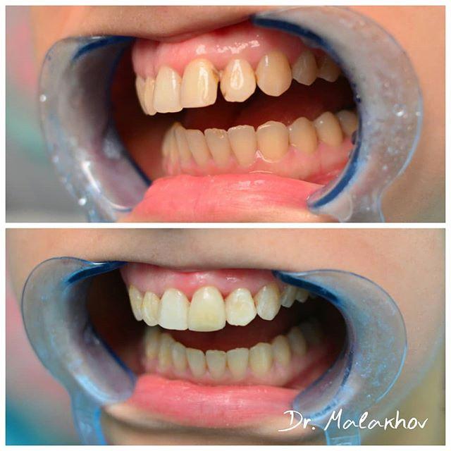Прямая реставрация 2.1-2.2 зубов