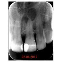 Периодонтит 2.1 зуба (до лечения)