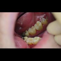 Эндодонтическое лечение 3х канального острого пульпита 3.6 🦷зуба (в 2а посещения)
