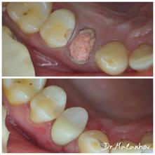 Лечение 2х канального хронического периодонтита 1.4 зуба с восстановлением композитными материалами и лечение контактного кариеса1.5 зуба с восстановлением композитными материалами
