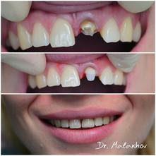 Реставрация 2.1 зуба