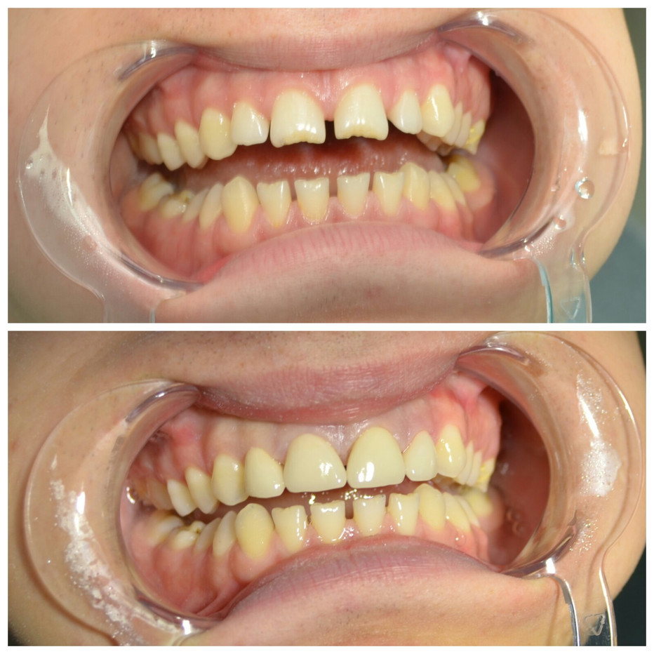 Реставрация передних 1.2-1.1-2.1-2.2 зубов