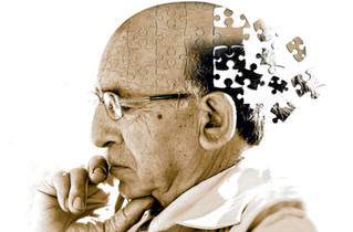 Alzheimer's Caregiving: How to Prepare for Live-In Care