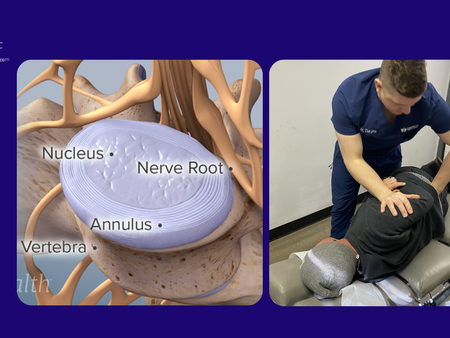 Spinal Discs: What they are and the importance of care