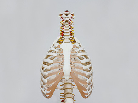 Swayback Posture