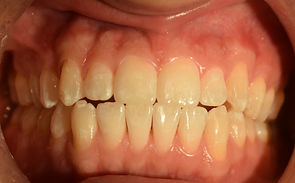 After Invisalign case1