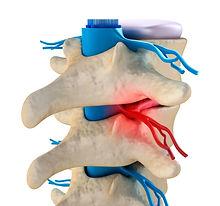 Центр энергетических и духовных практик Целитея Гордея: исцеление и лечение остеохондроза. Снятие боли в позвоночнике.