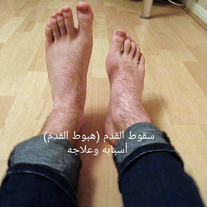 سقوط او هبوط القدم أسبابه وعلاجه