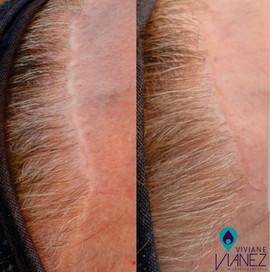 Micropigmentação - Camuflagem de cicatriz