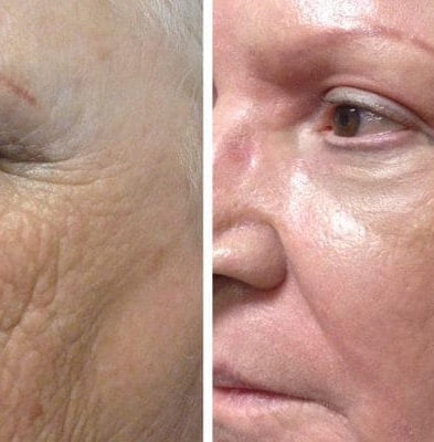 Fibroblast Treatment, Skin Tightening, Non-Surgical Skin Tightening