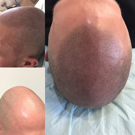 Scalp Tattoos for thinning hair.
