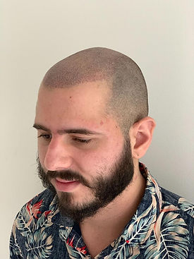 Scalp Micropigmentation Sydney Affordabl