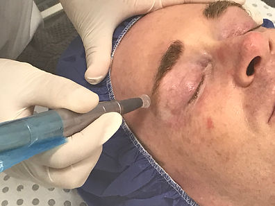 dermatude metatherapy 18 point carbin needle