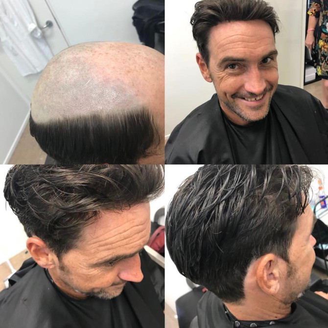 Here's How to Transition From Hair Loss to a Full Head of Hair.
