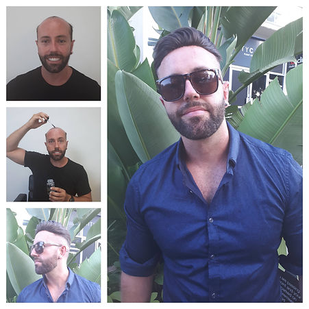 Hair replacement gold coast