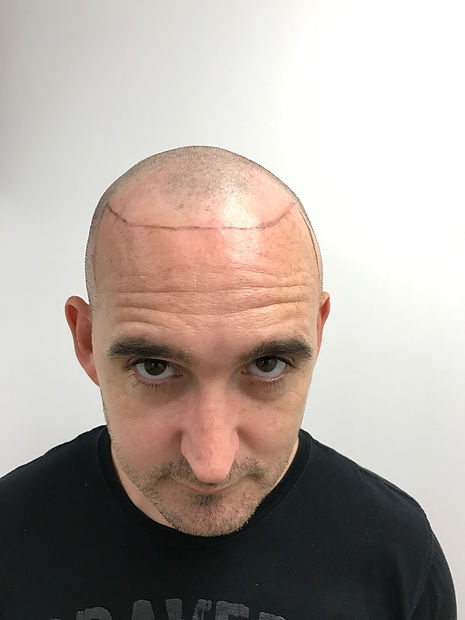 Scalp Micropigmentation Australia Before