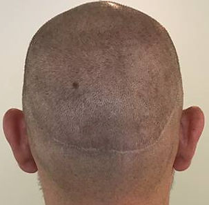 Scalp Micropigmentation Brisbane