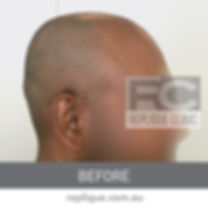 Hair tatto Brisbane Before and After