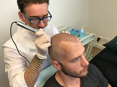 Scalp Micropigmentation being done.